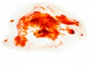 ovulation bleeding