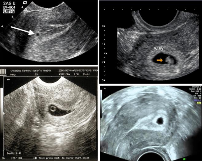 1 month ultrasound