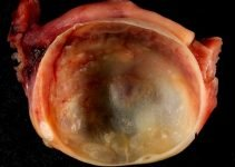 The Whats, Whys, and Hows of Ovarian Cysts