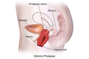 Uterine Prolapse in Pregnancy: Causes, Precautions, Treatments & Complications