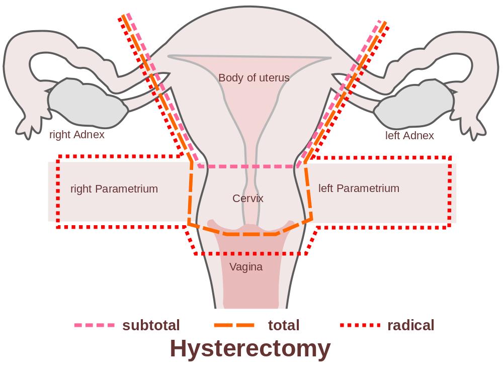 orgasm-soon-after-a-hysterectomy
